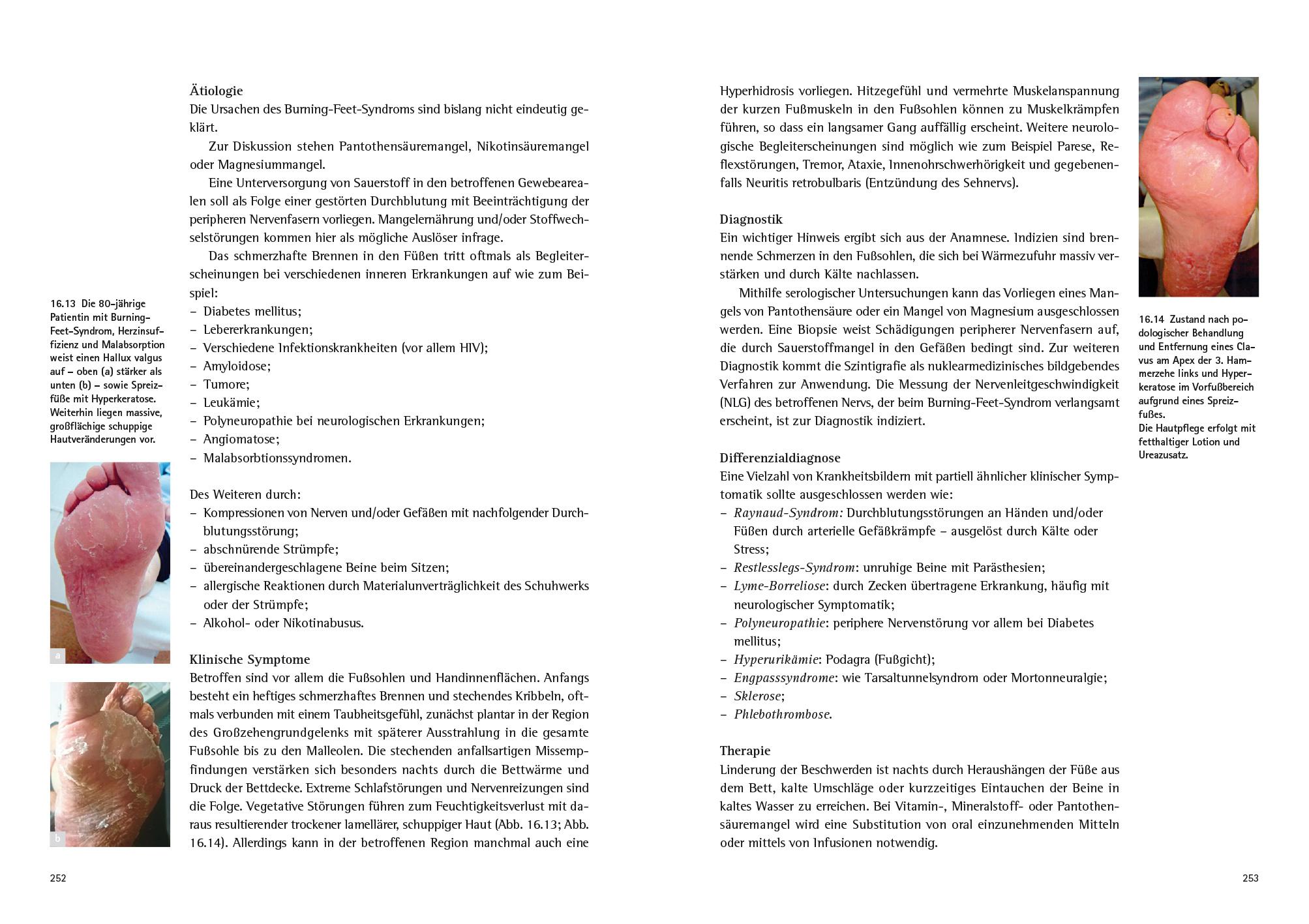 Orthopadieschuhtechnik Krankheitsbilder Am Fuss 2 Auflage