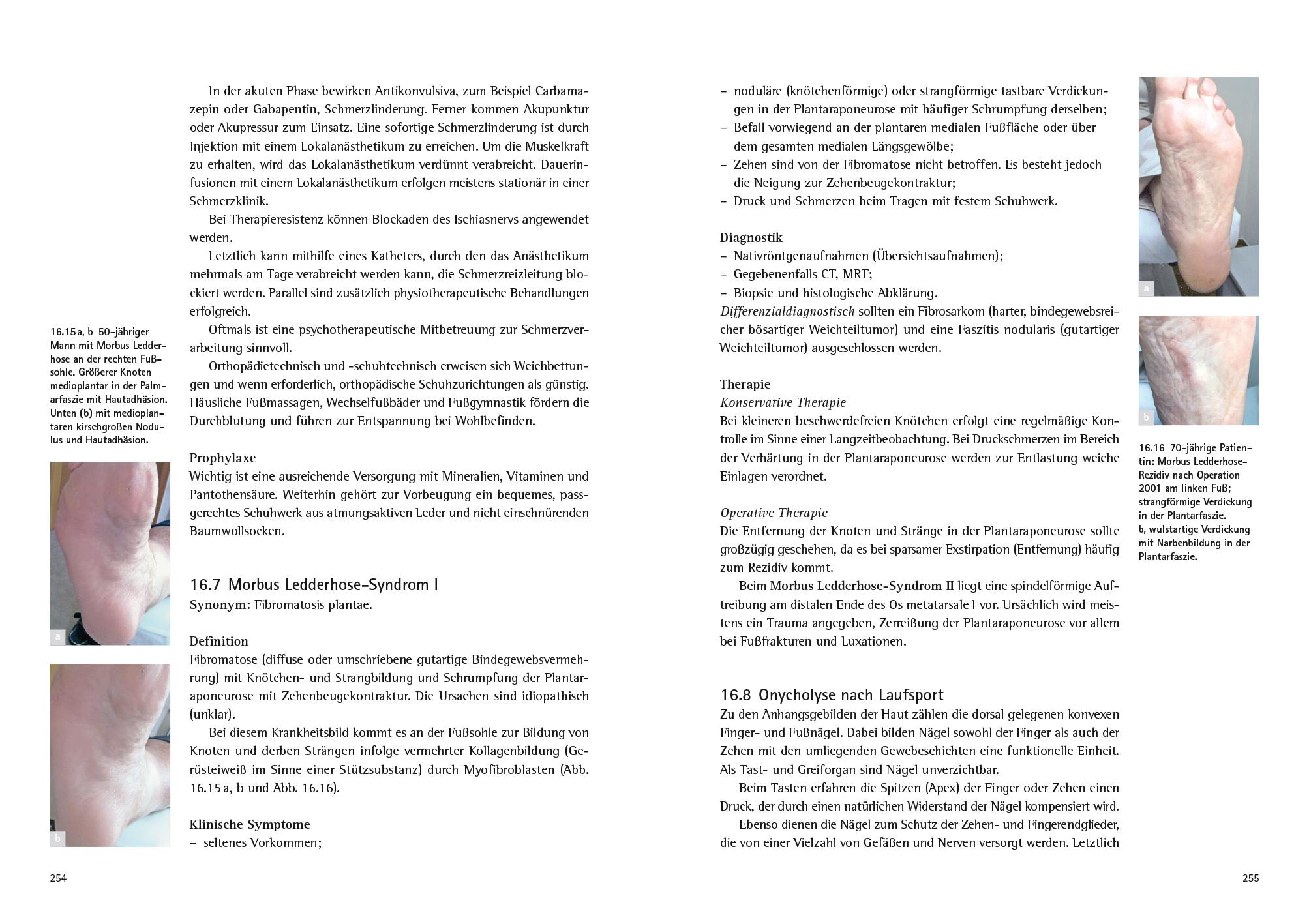 Orthopädieschuhtechnik Krankheitsbilder Am Fuß 2 Auflage